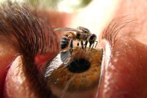 укус в глаз