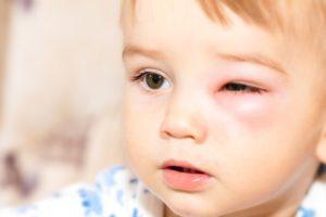 укус ребенка в глаз