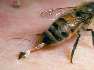 яд и жало пчелы